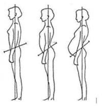 La femme et l'ostéopathie : Être accompagnée pendant sa grossesse